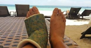 Danny  S foot cast